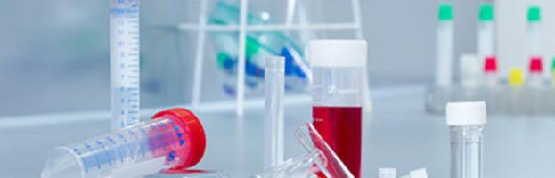 Лабораторная пластиковая посуда Sarstedt (Германия)